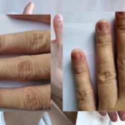 Dermatitis youtube